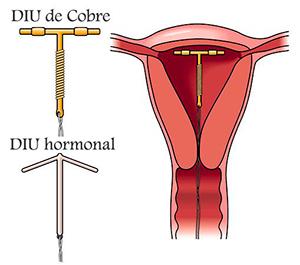 ginecologos en mallorca